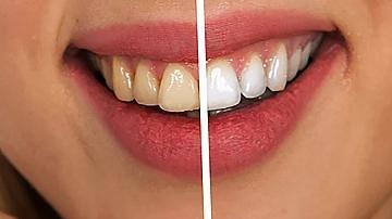 Без повече болезнени процедури! Да почистим лесно зъбния камък у дома!